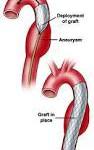 marfan syndroom symptomen aortadilatatie, funslemmensmarfan, klinische genetica, erfelijkheid, symptomen marfan syndroom