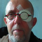 netvlies scheuring, oog laseren, laseren na scheuring netvlies, UMC Maastricht, funs lemmens, Marfan Sundroom