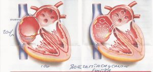 uitleg boezemflutter, hartritmestoring, marfan patient, marfan syndroom, funs lemmens
