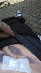 bloed uirstortingen na operatie 6, blauwe plek, endoprothese operatie, liezen,