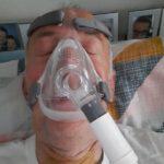 slapend met BPAP Masker, funs lemmens, marfan syndroom, opname IC MUMC