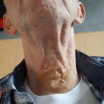 Controle van trachio-stoma bij KNO arts MUMC, funs lemmens, marfan syndroom, afdoppen van tachiostoma